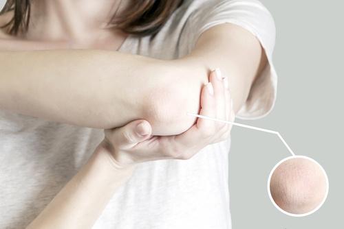 eczema demangeaison